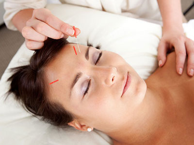 FavImage-Acupuncture.jpg